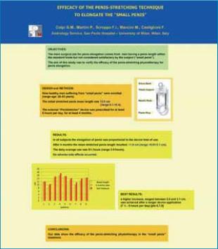Štúdia o účinnosti denného strečingu